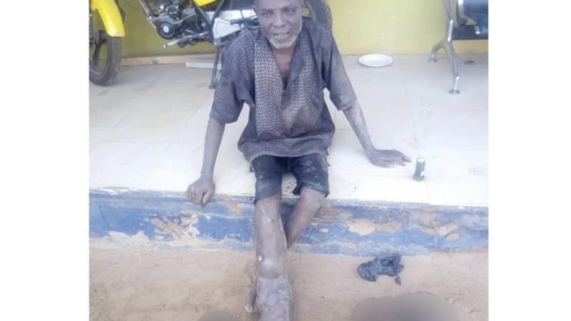 55 Year-Old Man Nabbed With Four Skulls , Hands Other Body Parts Harvested From A Cemetery
