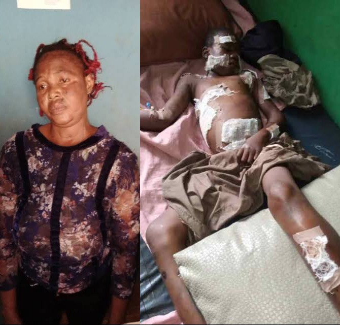 Woman Allegedly Uses Hot Knife To Burn 12 Year Old Relative Over Missing 5,000 Naira